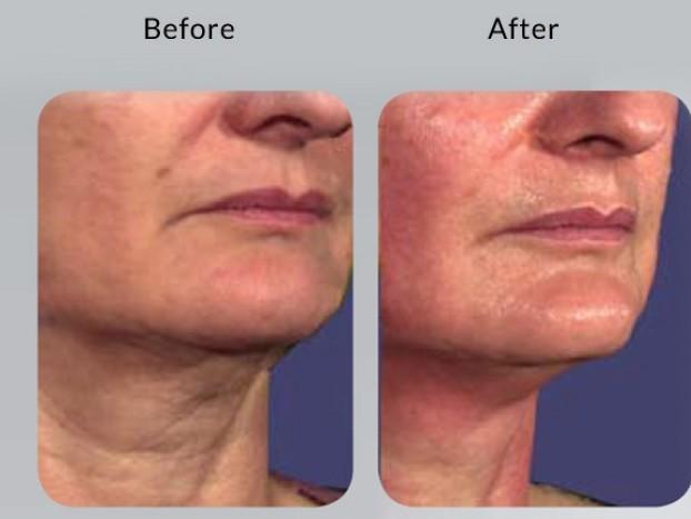 NIR Skin Tightening - Laser skin tightening Rejuvenating