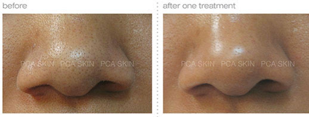 Detoxifying Blackhead Facial Toronto
