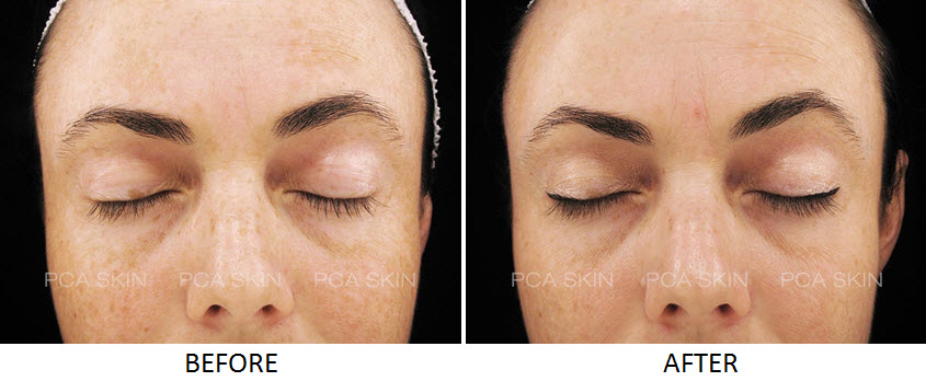 Chemical Peel Richmond Hill