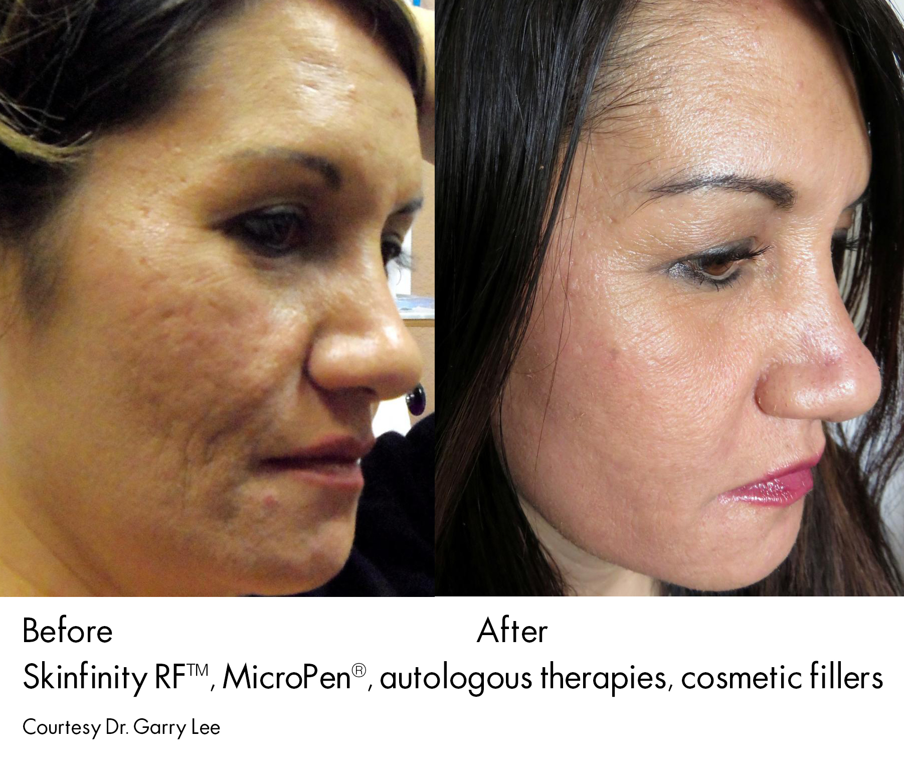 Microneedling Richmond Hill