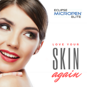 Microneedling - Golden Pulse Cosmetic Center Richmond Hill and Bradford