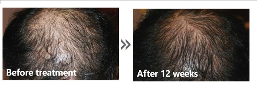 Golden Pulse Laser Clinic - AAPE for Hair Regrowth