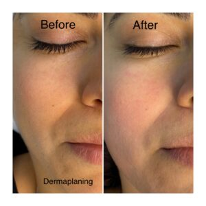 Dermaplaning, Before-After