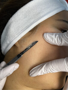 Dermaplaning at Golden Pulse