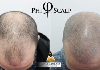 PHI Scalp-micropigmentation