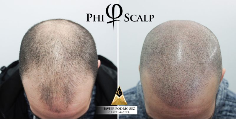 Golden Pulse Scalp Micropigmentation in Bradford, Richmond Hill, Vaughan, New Market