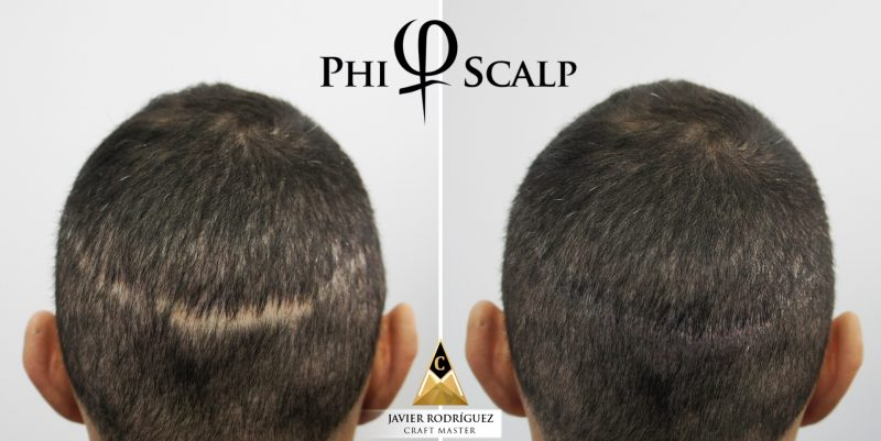 Covering Scar Line by Scalp-Micropigmentation