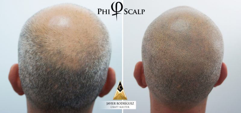 Scalp Micropigmentation for Men and Women
