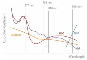 Soprano Ice Technology - Golden Pulse Laser Clinic