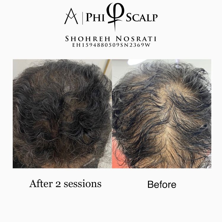 Scalp Micropigmentation by PHI Method