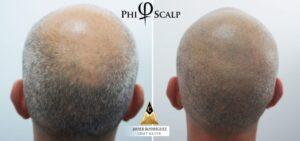 PHI Scalp Micropigmentation