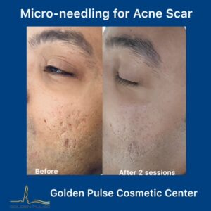 Golden Pulse Laser Clinic Micro needling - Before & After
