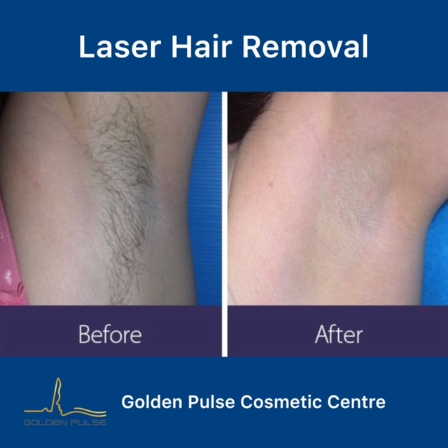 Laser Hair Removal Golden Pulse Laser Clinic Before After 1