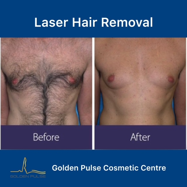 Laser Hair Removal Golden Pulse Laser Clinic Before After 2