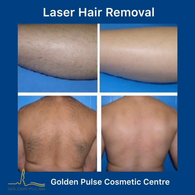 Laser Hair Removal Golden Pulse Laser Clinic Before After 3