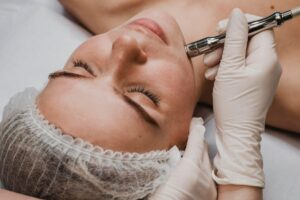 Microdermabrasion and medical facial at Golden Pulse Laser Clinic Richmond Hill