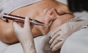 Microneedling at Golden Pulse Richmond Hill Cosmetic Clinic